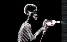 Xray image: skeleton using a power drill.